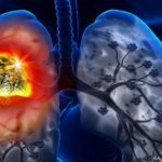 #EAPM: 'Let the EU Stars Shine' for lung cancer screening